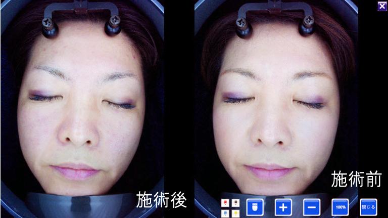 効果 美容 鍼 美容鍼の効果