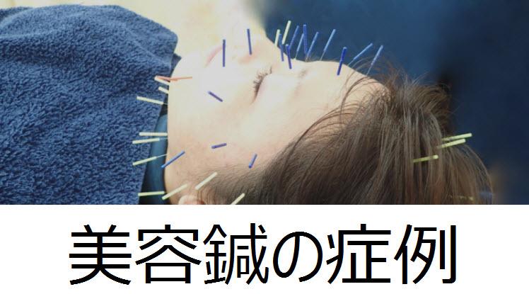 美容鍼の症例