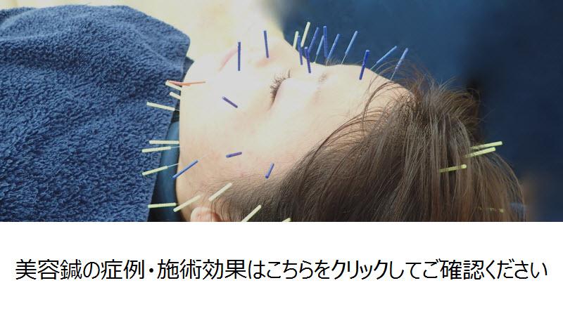 美容鍼の症例・施術効果