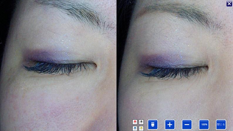 美容鍼症例2