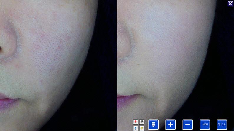 容鍼症例:ほうれい線が薄く