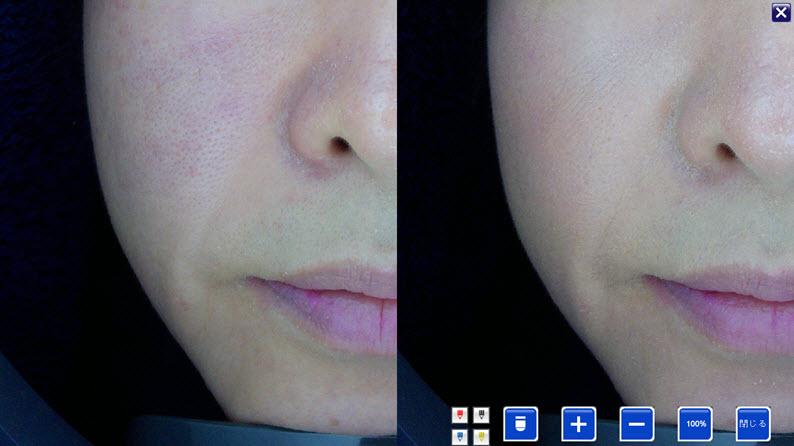 美容鍼症例:ほうれい線