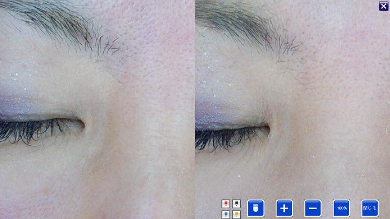 美容鍼症例:目頭