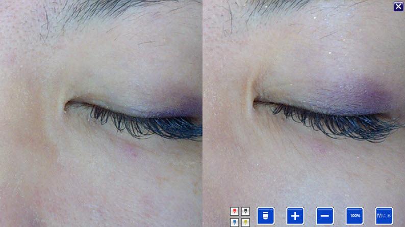 美容鍼症例:目頭のたるみ