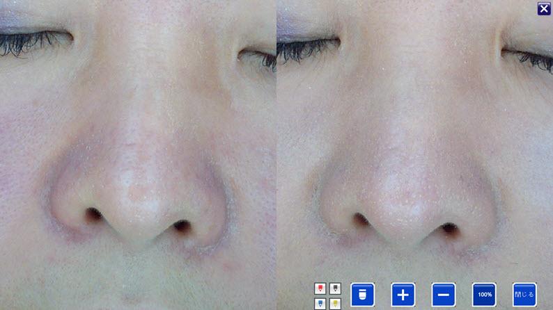 美容鍼症例:鼻のむくみ