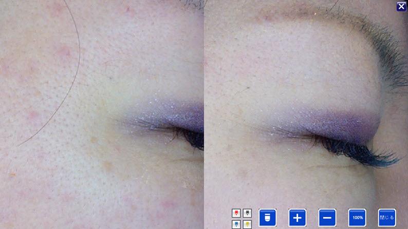 美容鍼症例:目じりのしわ